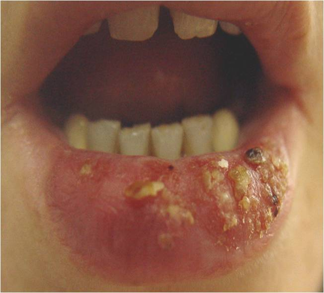 Infection – Healthy Manners