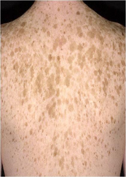 how to get rid of oral melanotic macule