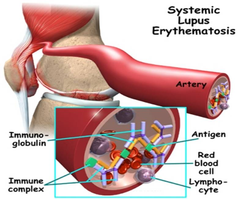 systemic lupus erythmatosus essay Learn systemic lupus erythematosus (sle) symptoms (butterfly rash), treatment options, diagnosis, prognosis, causes, and pregnancy flares read about diet recommendations, and see pictures of the autoimmune disease.