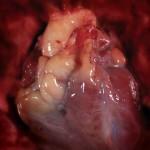 BP and Heart: Natural Treatment Recipes