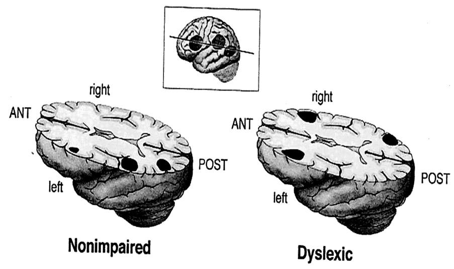 Dysluxia Signatures2
